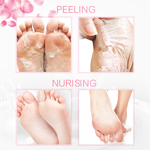 4 paires Rose Foot Peeling Mask, 7 Jours Repair Rough Heel for Soft Nourish Feet, Removes Calluses & Dry Skin