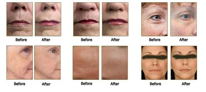 11 Lines 3D HIFU Machine Treatment Before and After