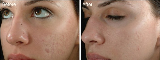 derma roller before and after 02