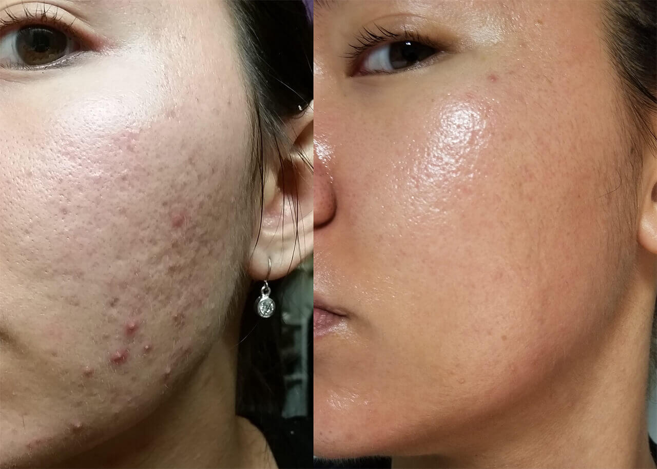 derma roller before and after 04