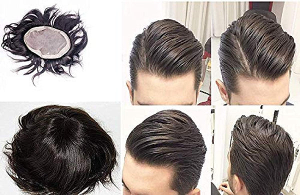 buy hair patch