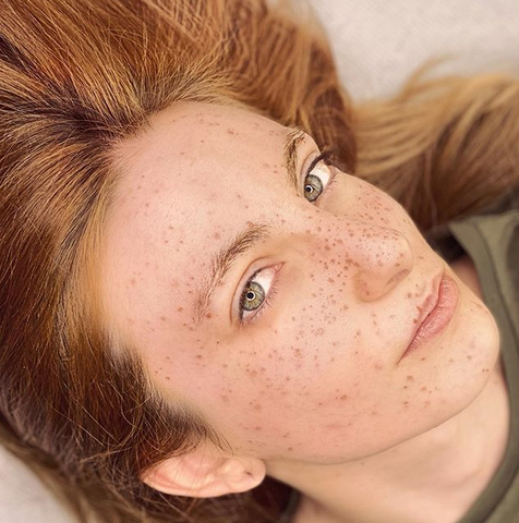 Tattooed Freckles