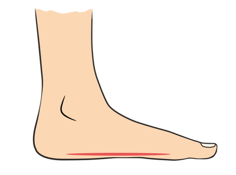 Orthotic Foot Insole